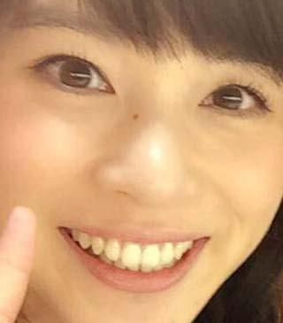 皆川玲奈 前歯の写真