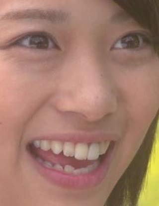 森川葵 前歯の写真
