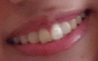 吉岡亜衣加 前歯の写真