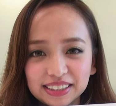 平尾 優美花(ゆみちぃ) 歯