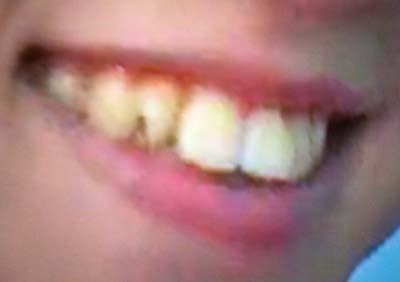 ゆうたろう 前歯の写真