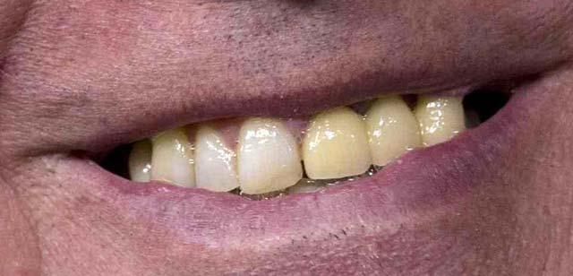Bernie Sanders Teeth Analysis