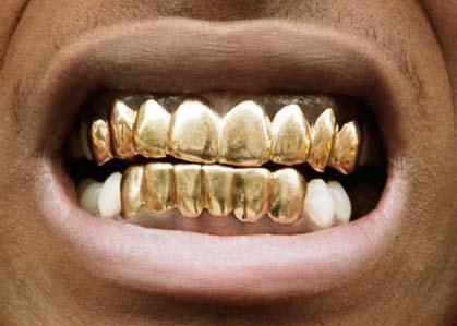 ASAP rocky 前歯の写真