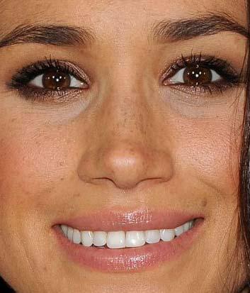 メーガン・マークル 前歯の写真