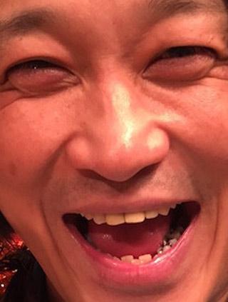 永野 銀歯