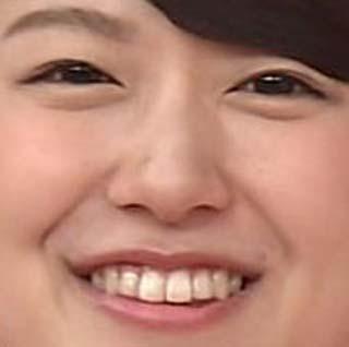 尾崎里紗 前歯の歯並び