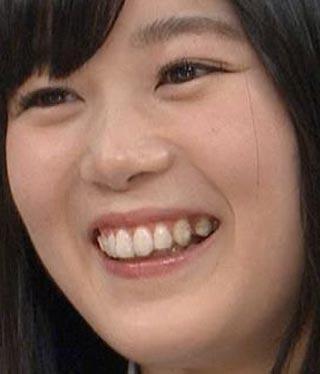 尾関梨香 前歯の歯並び