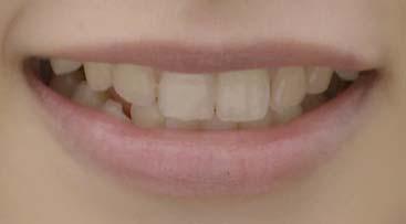 桜井日奈子 前歯の写真