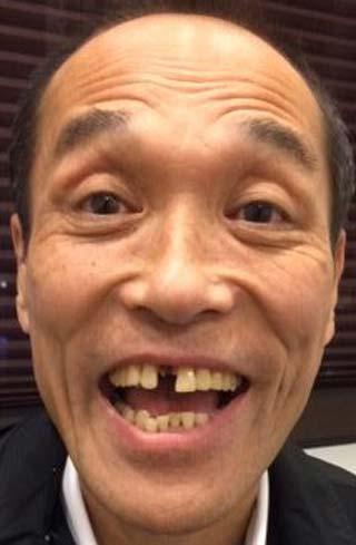 東国原英夫(そのまんま東) 歯抜け