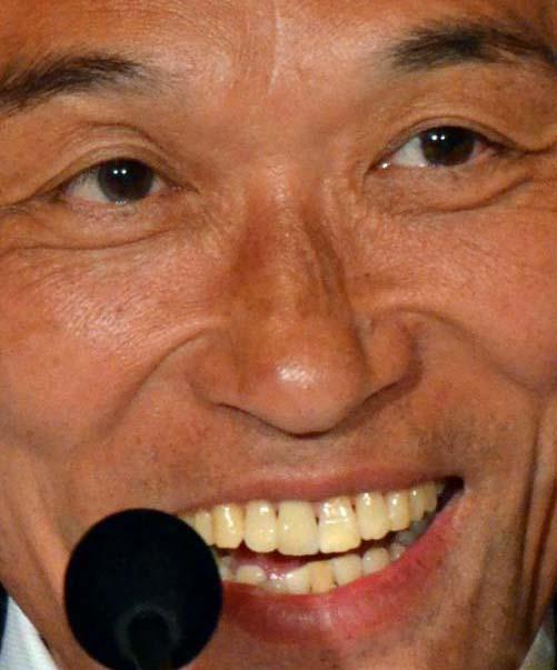 東国原英夫(そのまんま東) 差し歯