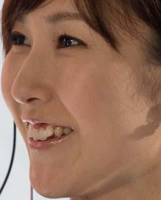 新井翔子 前歯
