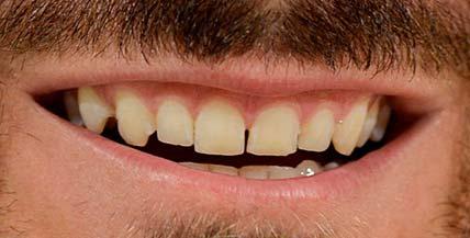 Bonutchi teeth