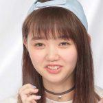 江野沢愛美さんの前歯や歯並び(八重歯抜歯・歯列矯正)
