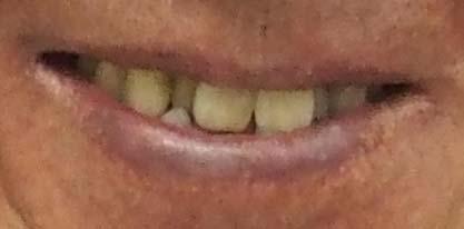 マック赤坂 歯並び