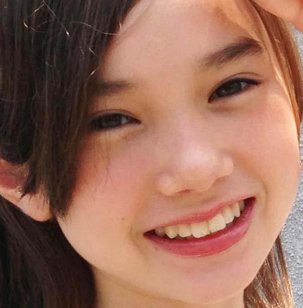 マーシュ彩 前歯の写真