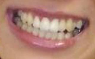 祥子 銀歯