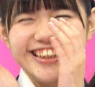 田中優香 歯並び