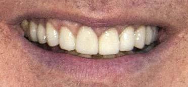 アラン・リックマン 前歯の画像
