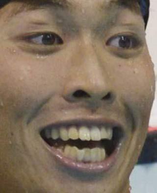 萩野公介 歯