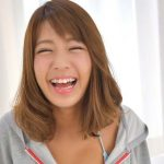橋本梨菜さんの前歯や歯並び