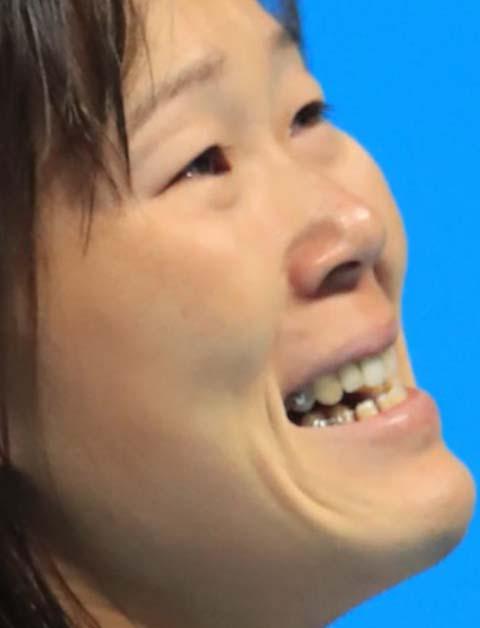 金藤理絵 銀歯