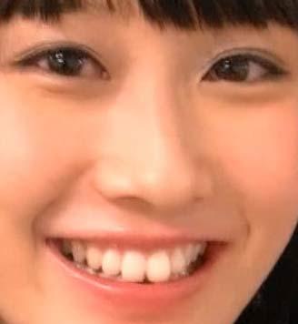 矢倉楓子 前歯