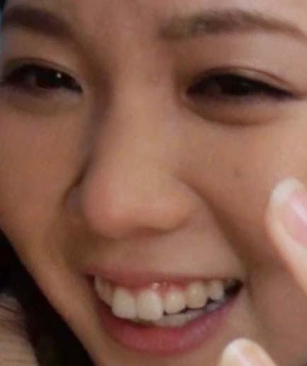 ヒロド歩美 前歯