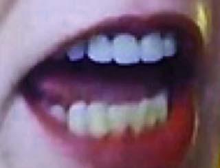 高畑淳子 前歯の写真