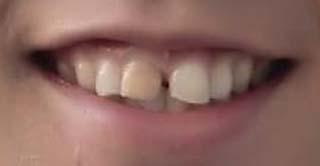天達武史 前歯の写真