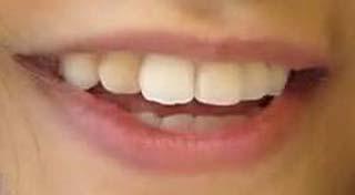 井上苑子 前歯の写真