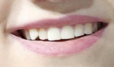 Medvedeva teeth