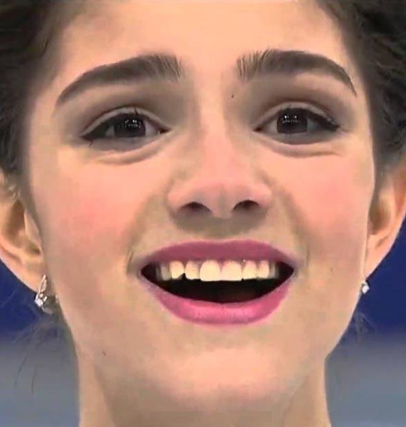 メドベージェワ 前歯の画像