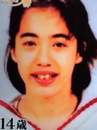 眞木美咲パメラ 歯