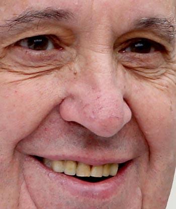 Pope Francis teeth
