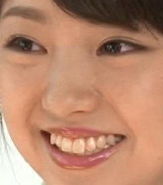 今泉佑唯 前歯