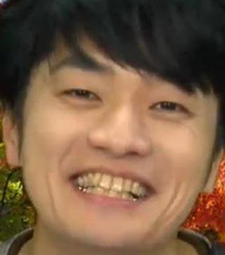 福山潤 銀歯