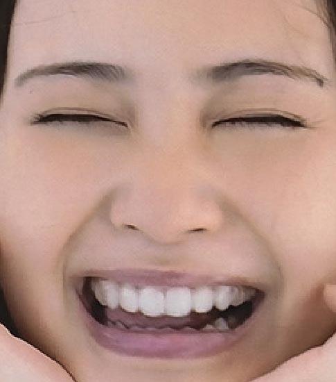 市道真央 前歯の画像