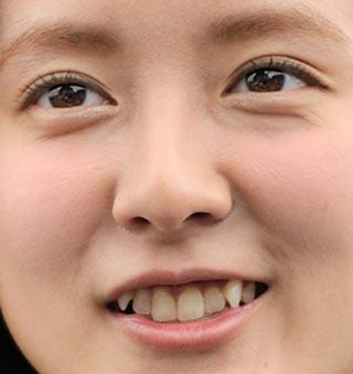 生田佳那 前歯の画像