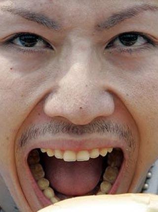 小林尊 前歯