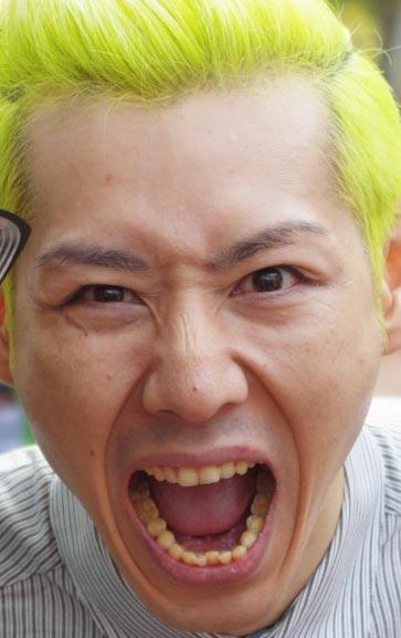 小林尊 歯