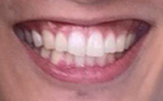渡邊ヒロアキ 前歯