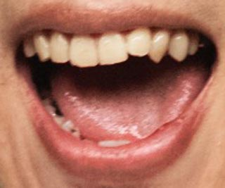 ヤマサキセイヤ 前歯の画像