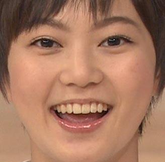 安本彩花 前歯