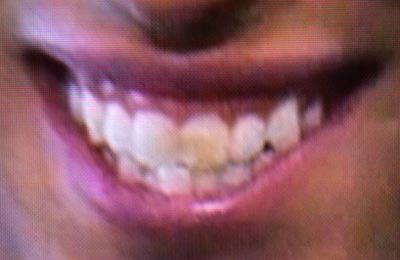 ケンブリッジ飛鳥 変色した歯