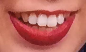 ブルゾンちえみ 前歯