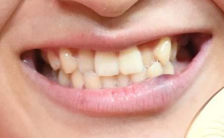土性沙羅 歯並び