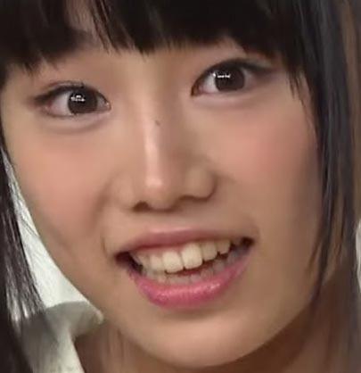 廣田あいか 前歯