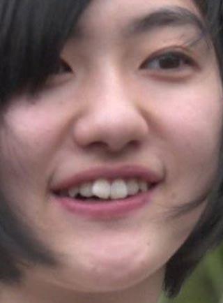 小林歌穂 前歯