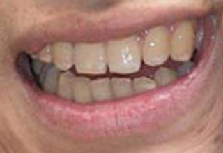 窪塚洋介 歯並び