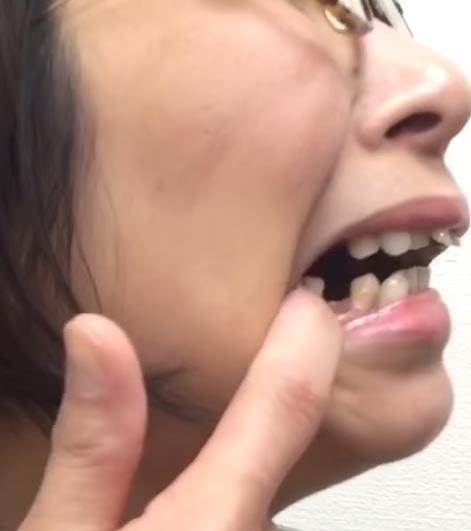 くわばたりえ 抜歯